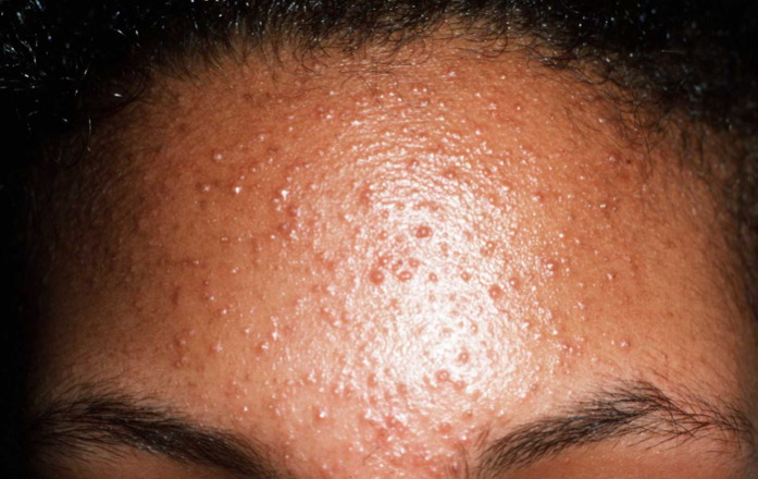 Fungal Acne What Is It And How To Treat It Moisture Plus Skincare